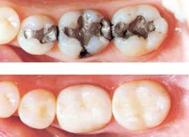 amalgam to composite filling pic