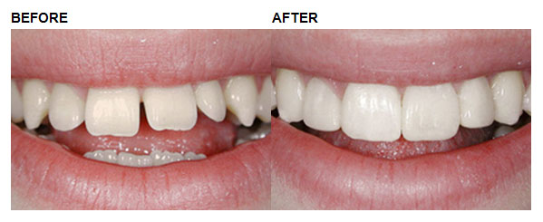 before and after example 2