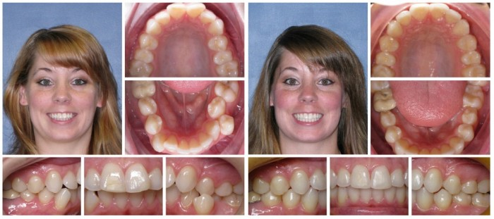 Invisalign Before and After: Example 4