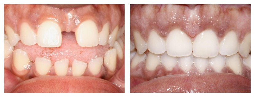Invisalign Before and After: Example 3