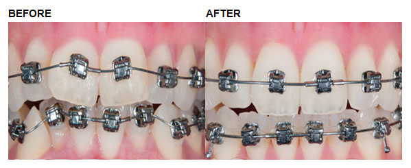 Comprehensive  Orthodontics: Example 1