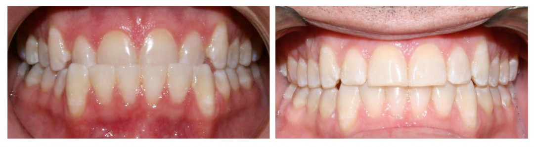 Invisalign Before and After: Example 1
